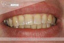 risultato igiene orale professionale polispecialistico meroni cantù