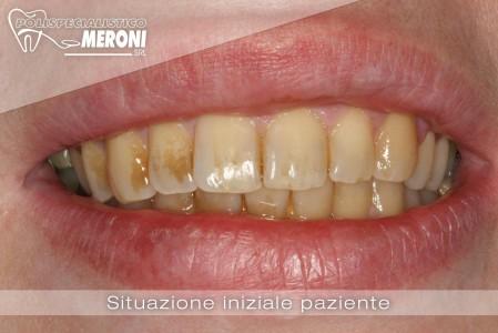 situazione iniziale igiene orale professionale polispecialistico meroni cantù