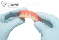 Studio dentistico Polispecialistico Meroni effettua protesi dentali fisse e mobili