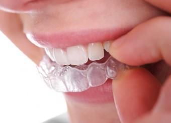 Polispecialistico Meroni Cantù ortodonzia moderna